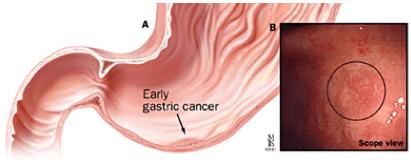 ECG di tipo IIc (occorre l'esame istologico per la diagnosi)